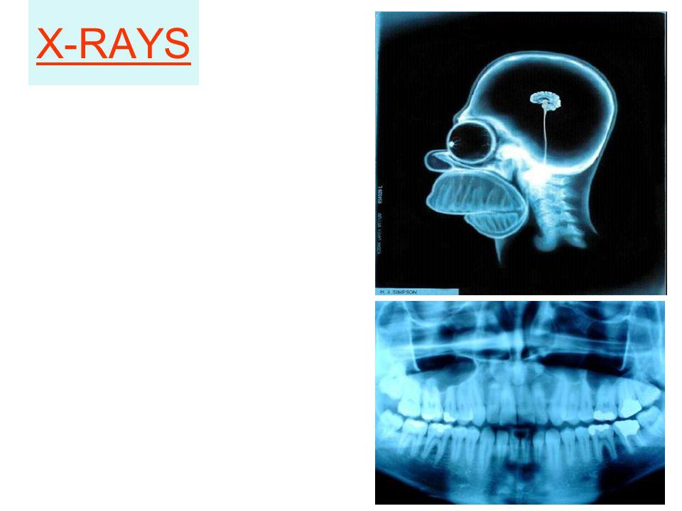 X-RAYS 12