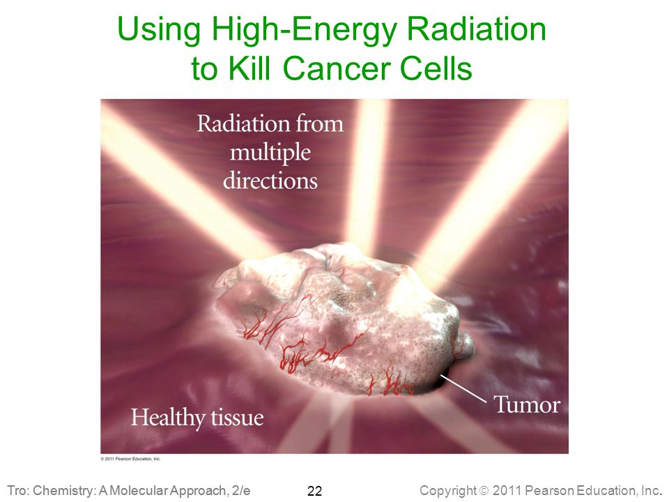 Using High-Energy Radiation to Kill Cancer Cells
