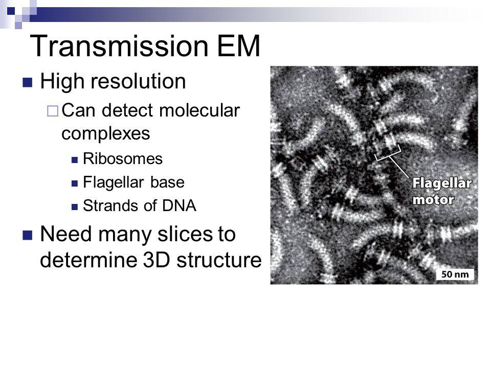 Transmission EM High resolution