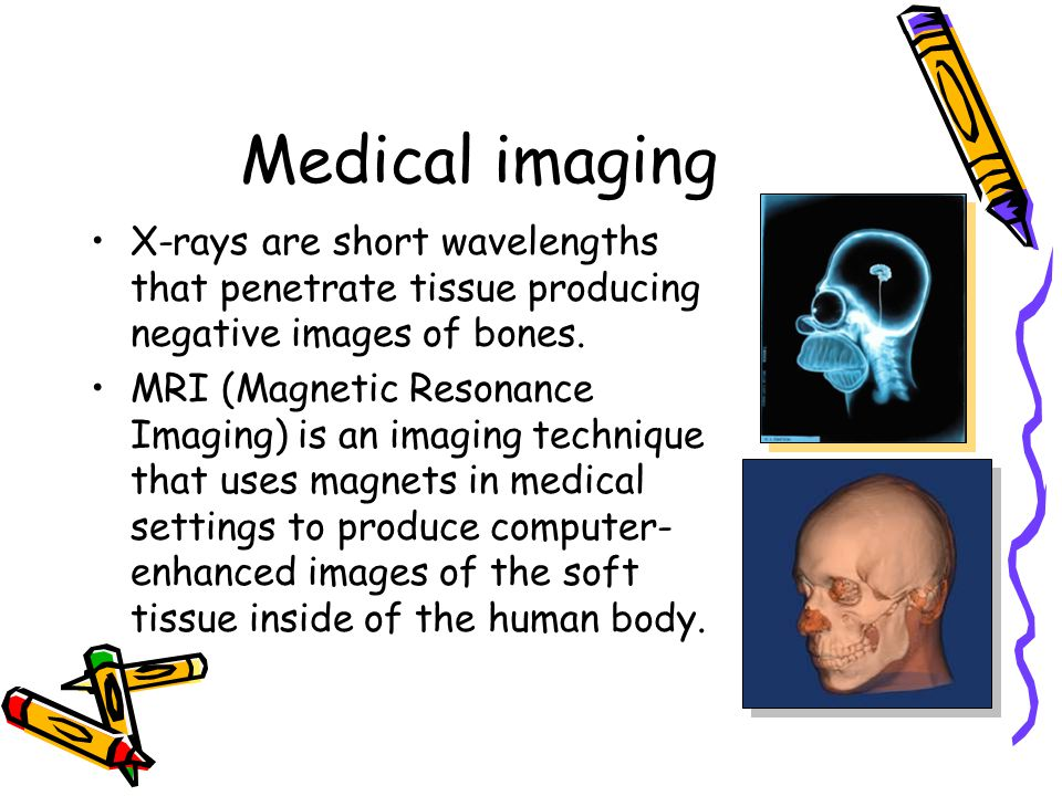 Medical imaging X-rays are short wavelengths that penetrate tissue producing negative images of bones.