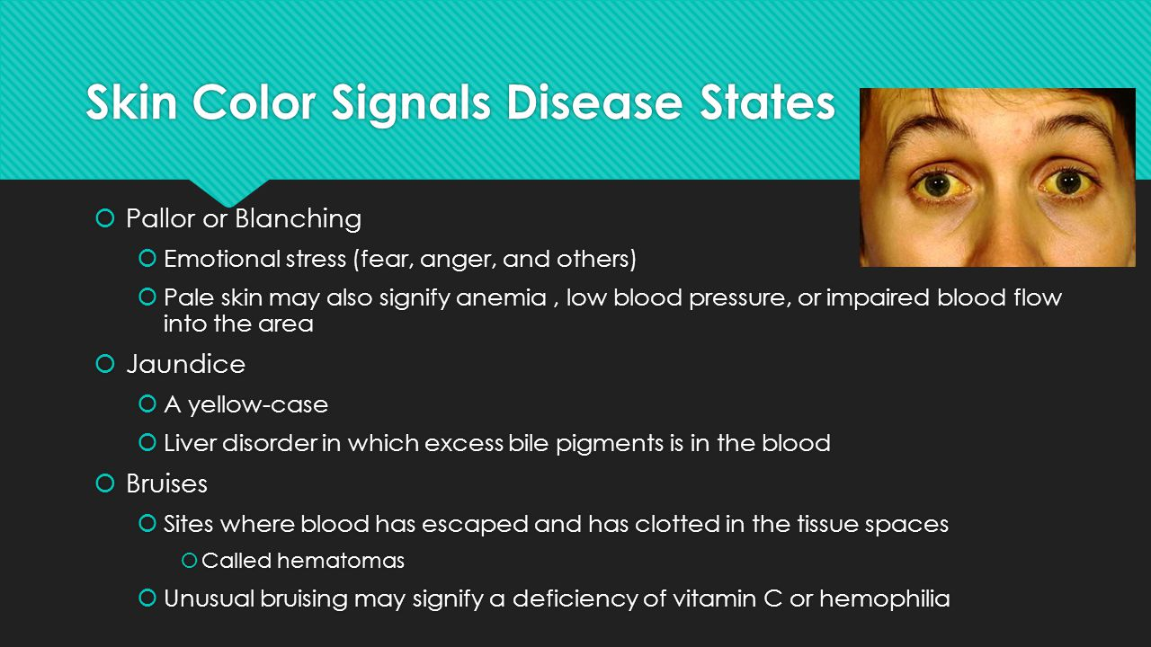 Skin Color Signals Disease States