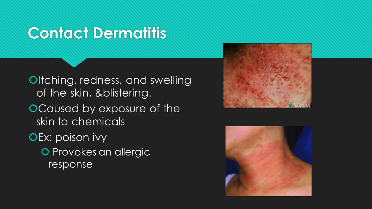 Contact Dermatitis Itching, redness, and swelling of the skin, &blistering. Caused by exposure of the skin to chemicals.