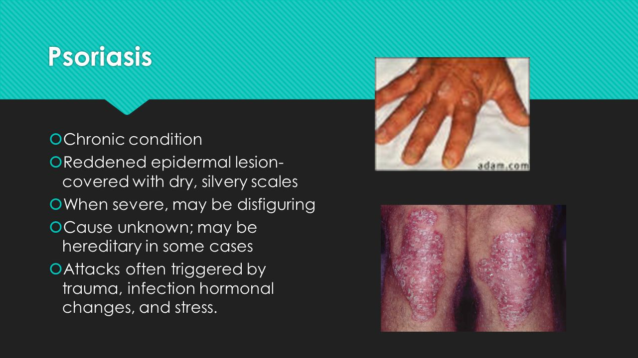 Psoriasis Chronic condition