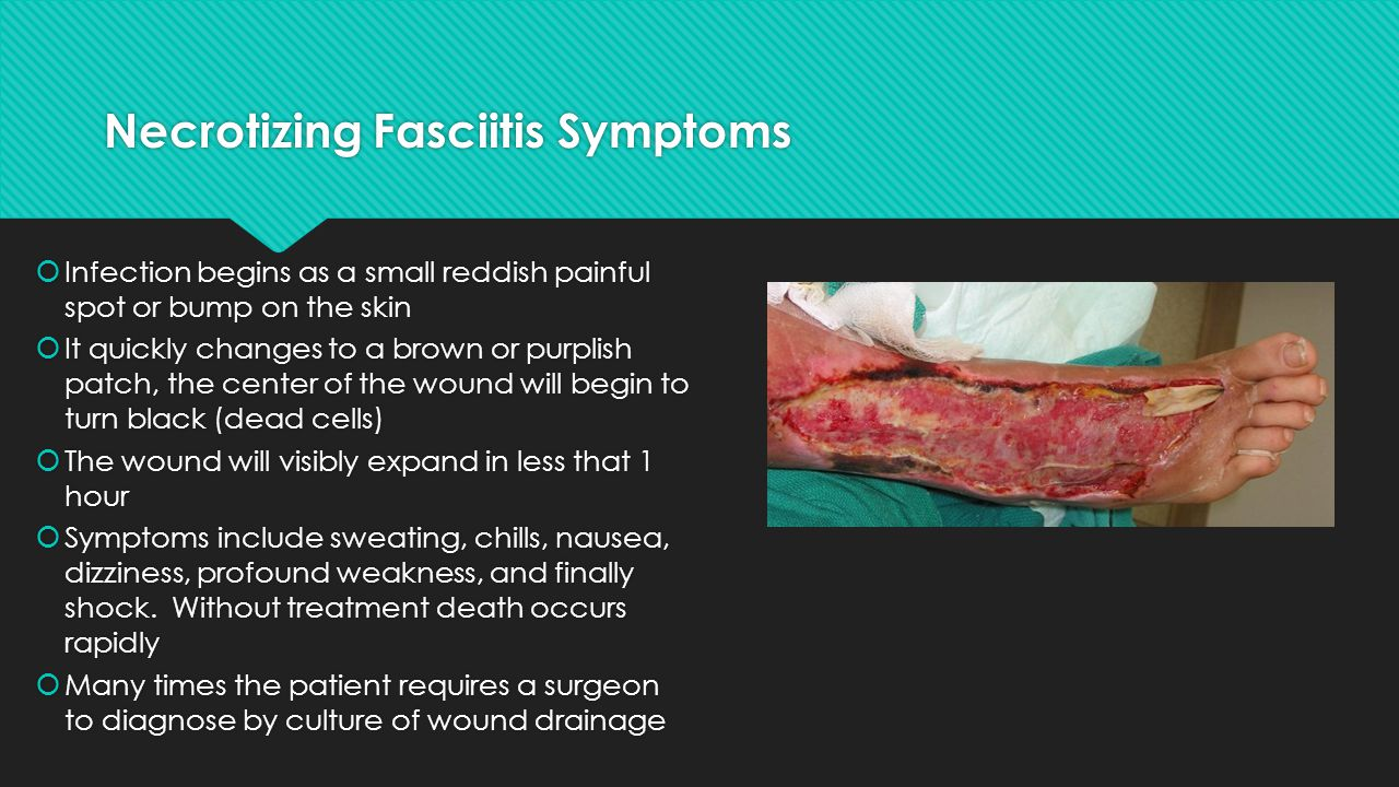 Necrotizing Fasciitis Symptoms