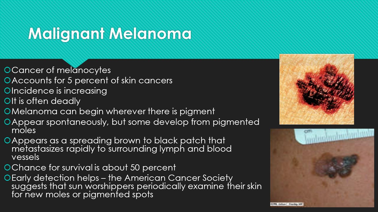 Malignant Melanoma Cancer of melanocytes