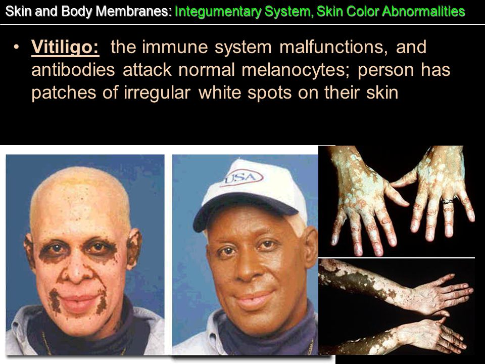 Skin and Body Membranes: Integumentary System, Skin Color Abnormalities