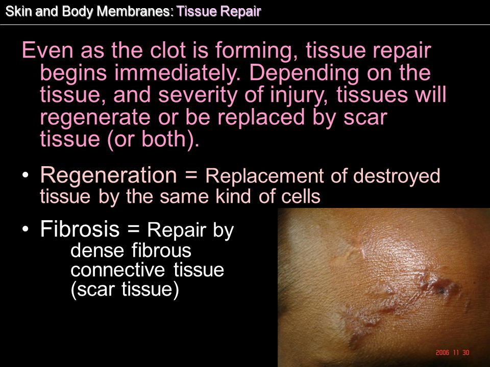Fibrosis = Repair by dense fibrous connective tissue (scar tissue)