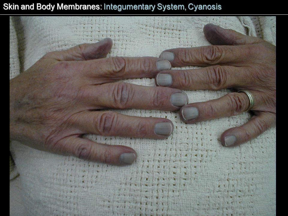 Skin and Body Membranes: Integumentary System, Cyanosis