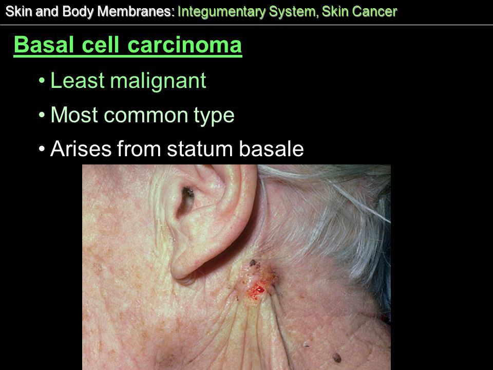 Basal cell carcinoma Least malignant Most common type