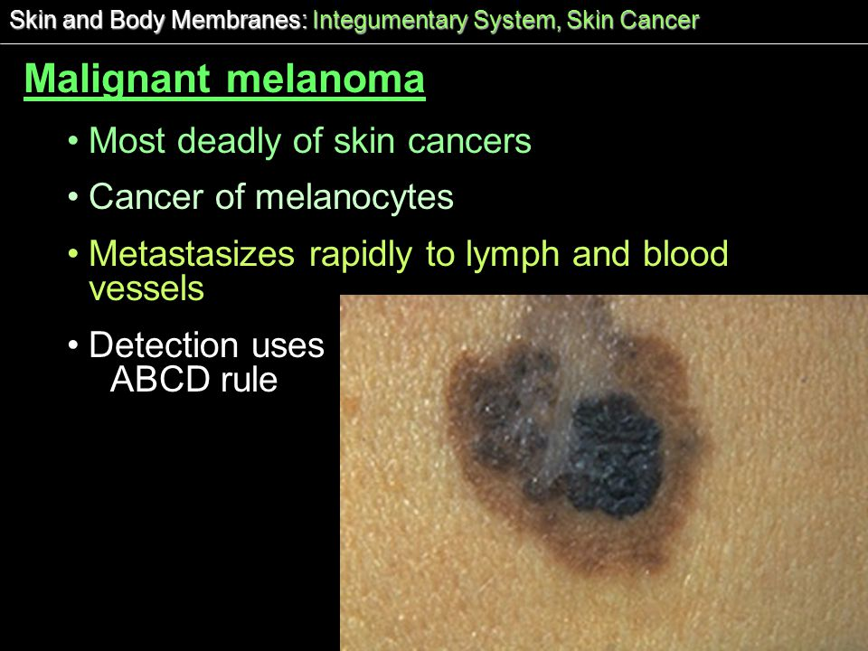 Malignant melanoma Most deadly of skin cancers Cancer of melanocytes
