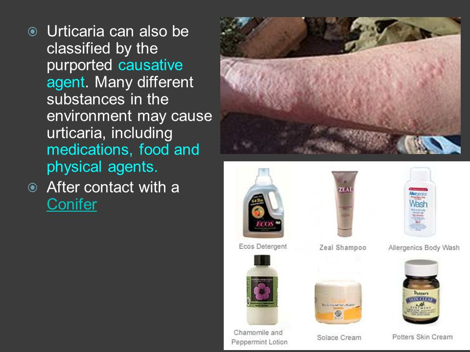 Urticaria can also be classified by the purported causative agent