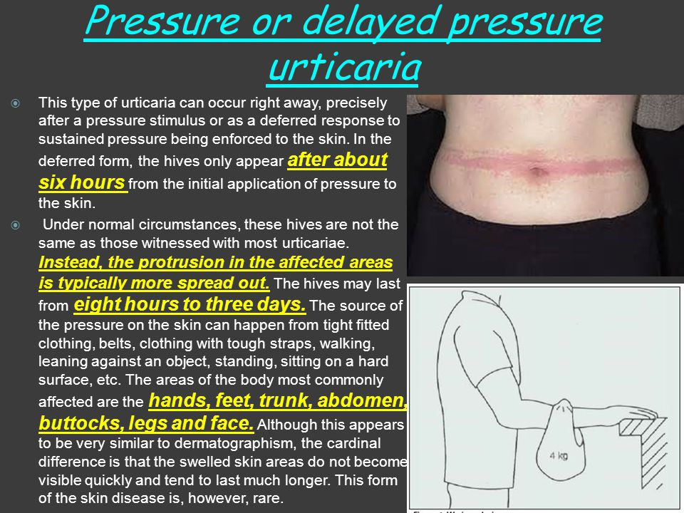 Pressure or delayed pressure urticaria