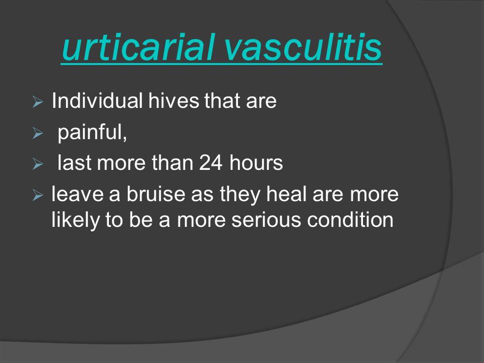 urticarial vasculitis