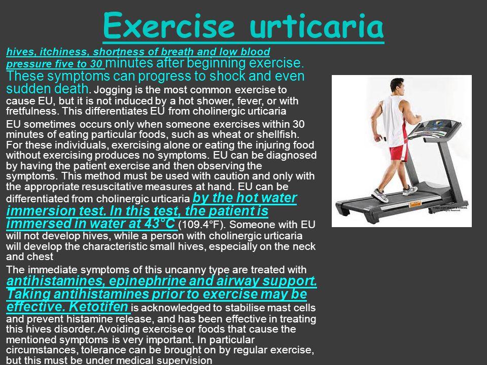 Exercise urticaria