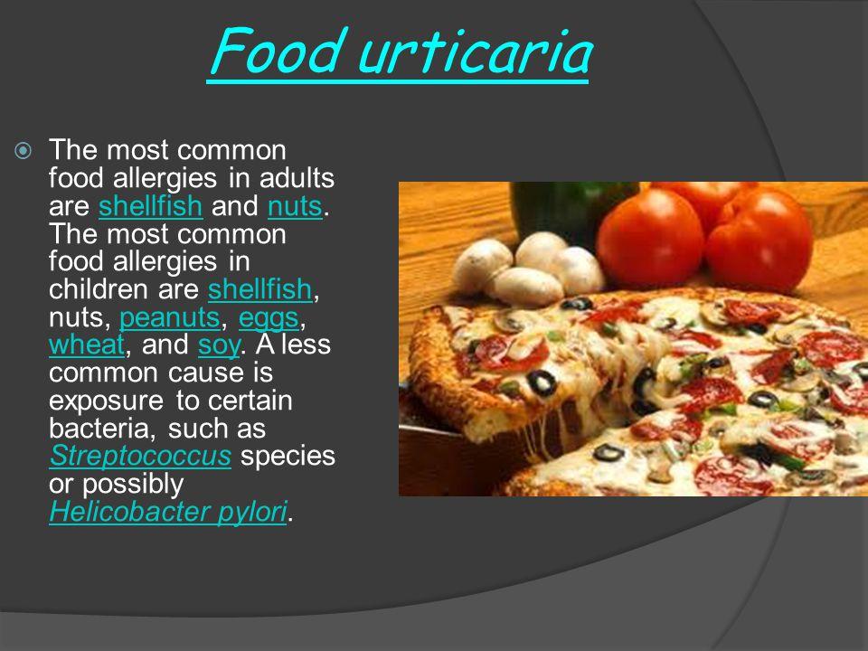 Food urticaria