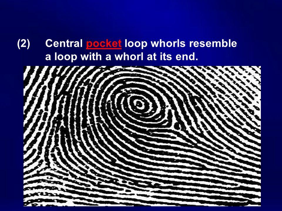 (2). Central pocket loop whorls resemble