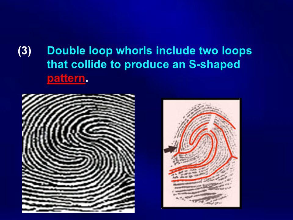 (3). Double loop whorls include two loops