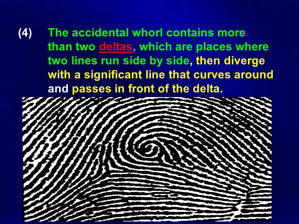 (4). The accidental whorl contains more