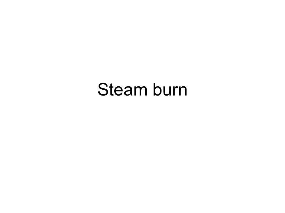 Steam burn