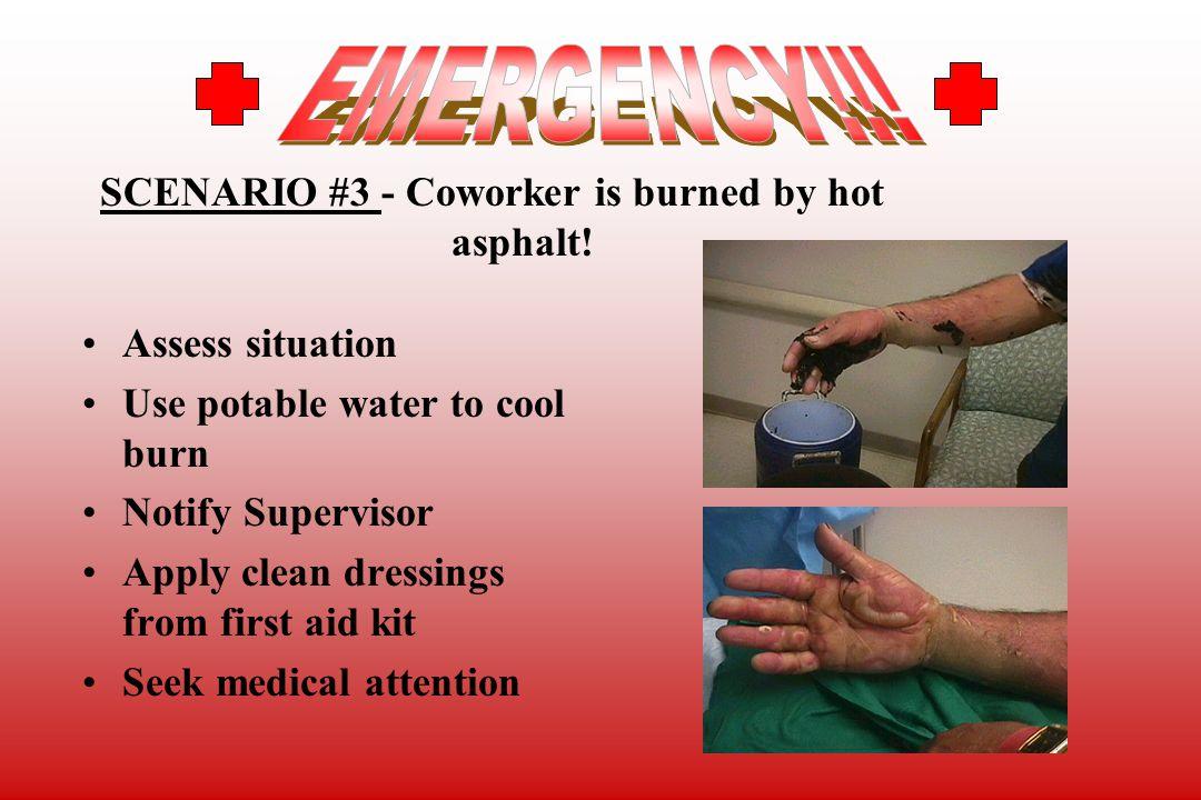 EMERGENCY!!! SCENARIO #3 - Coworker is burned by hot asphalt!