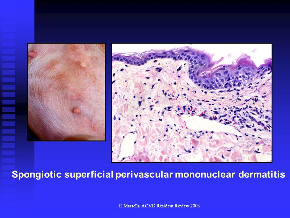 Spongiotic superficial perivascular mononuclear dermatitis
