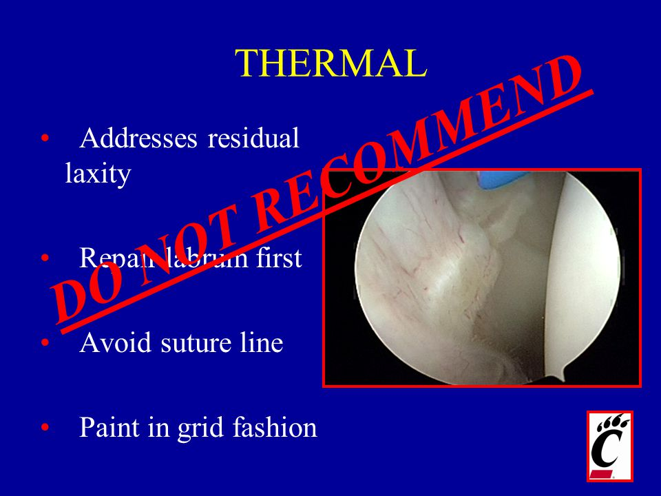 DO NOT RECOMMEND THERMAL Addresses residual laxity Repair labrum first
