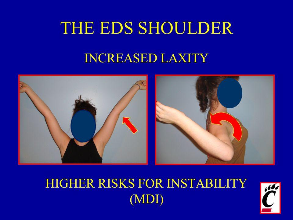 HIGHER RISKS FOR INSTABILITY