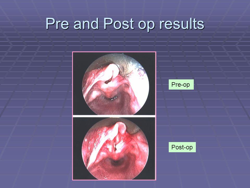 Pre and Post op results Pre-op Post-op