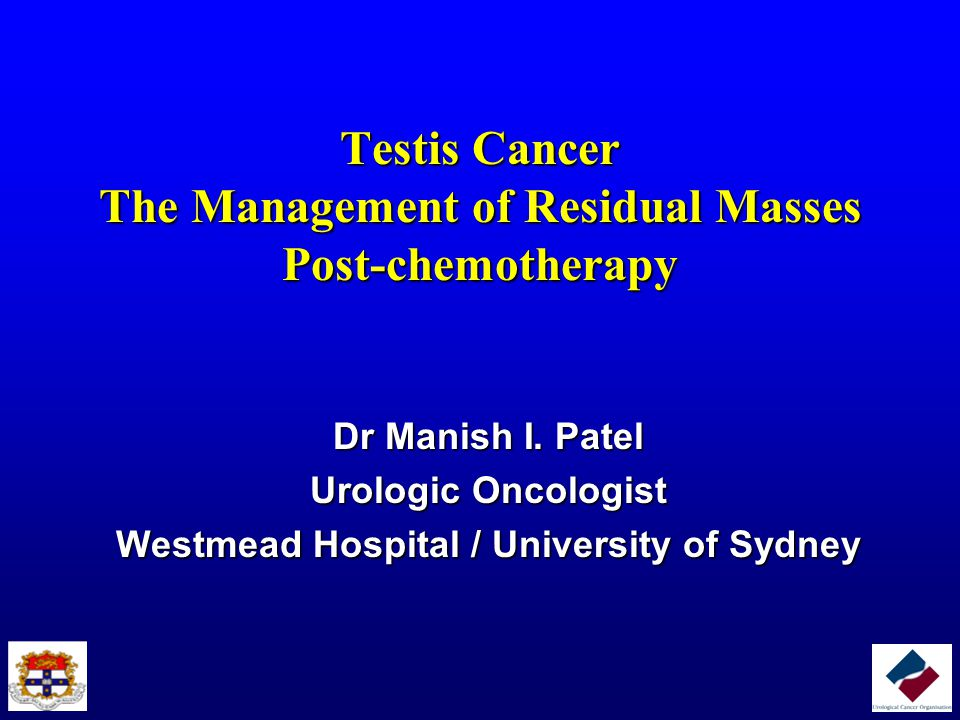 Testis Cancer The Management of Residual Masses Post-chemotherapy