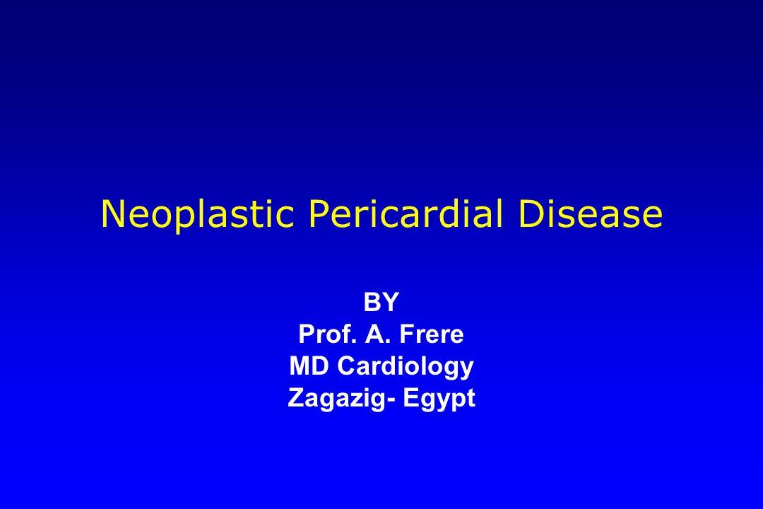 Neoplastic Pericardial Disease