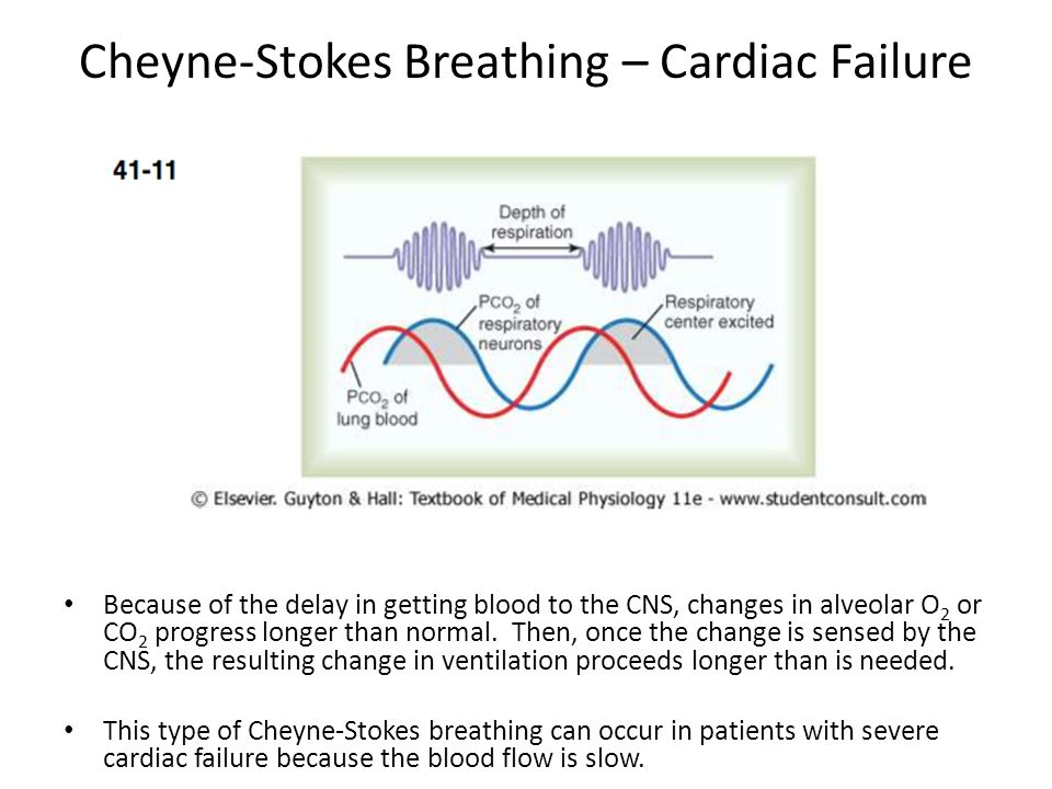 Cheyne-Stokes Breathing – Cardiac Failure