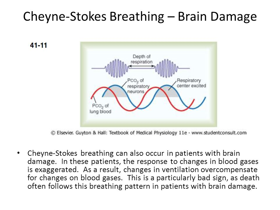 Cheyne-Stokes Breathing – Brain Damage