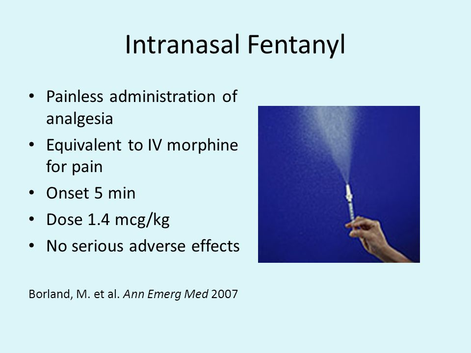 Intranasal Fentanyl Painless administration of analgesia