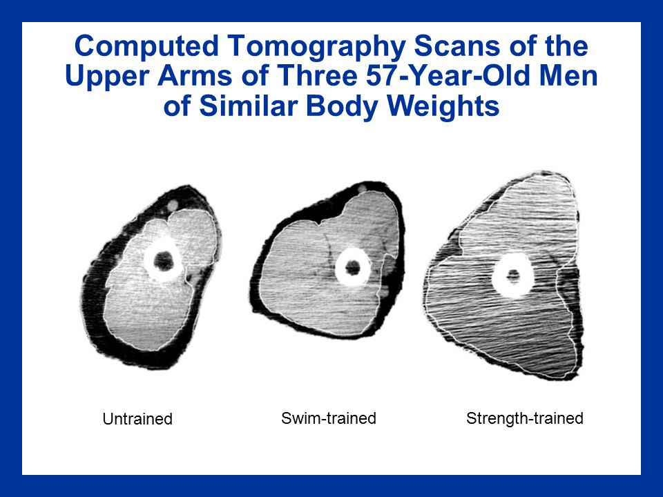 Computed Tomography Scans of the Upper Arms of Three 57-Year-Old Men of Similar Body Weights