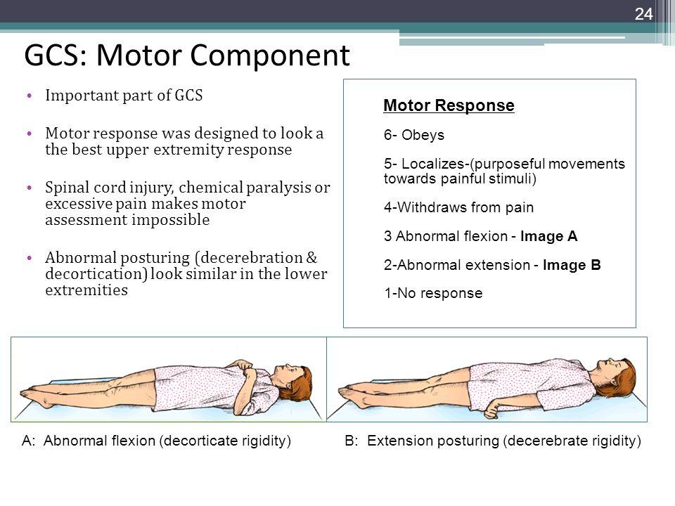GCS: Motor Component Important part of GCS Motor Response