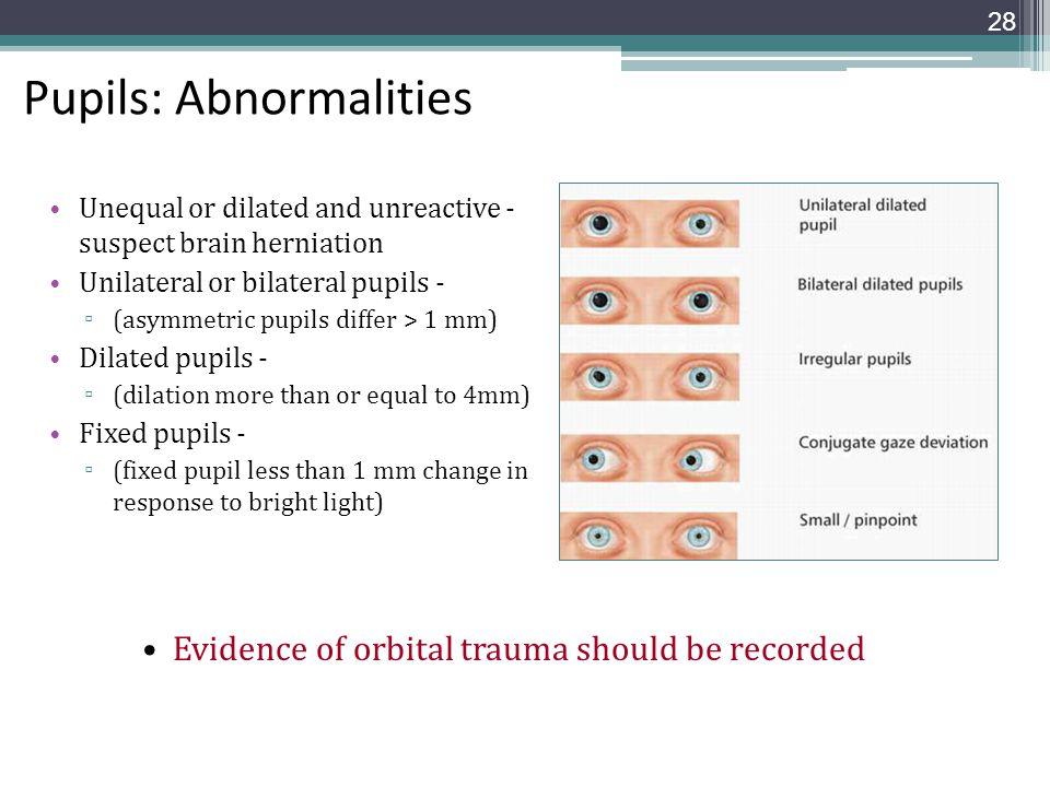Pupils: Abnormalities