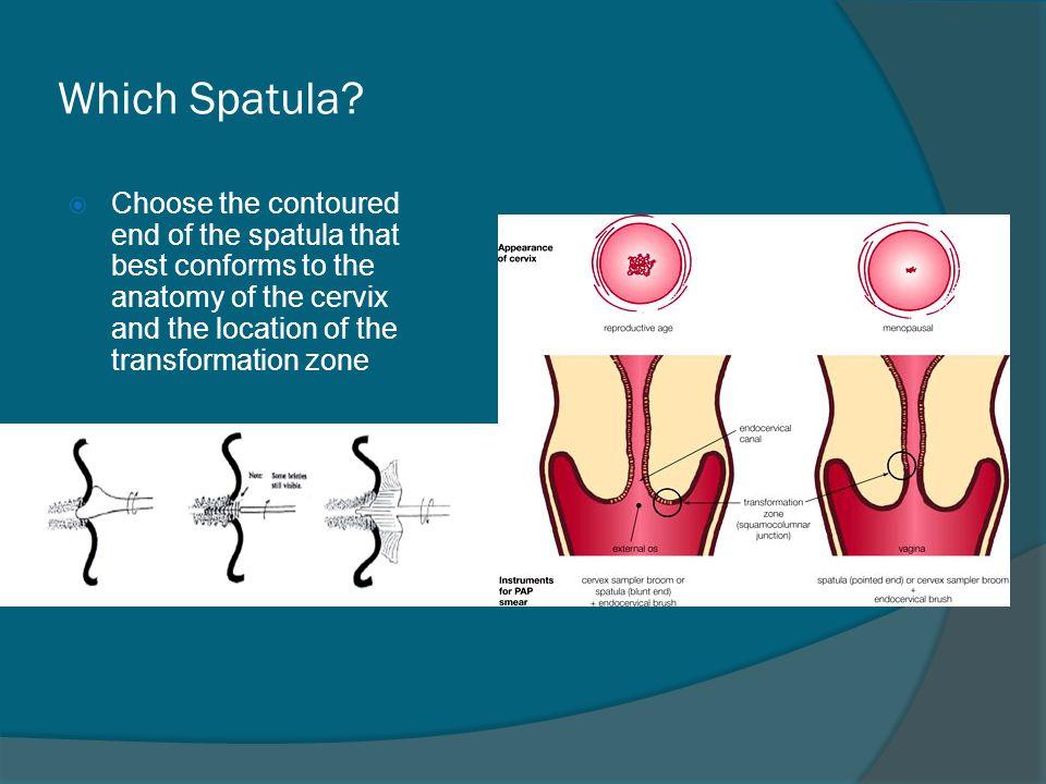 Which Spatula.
