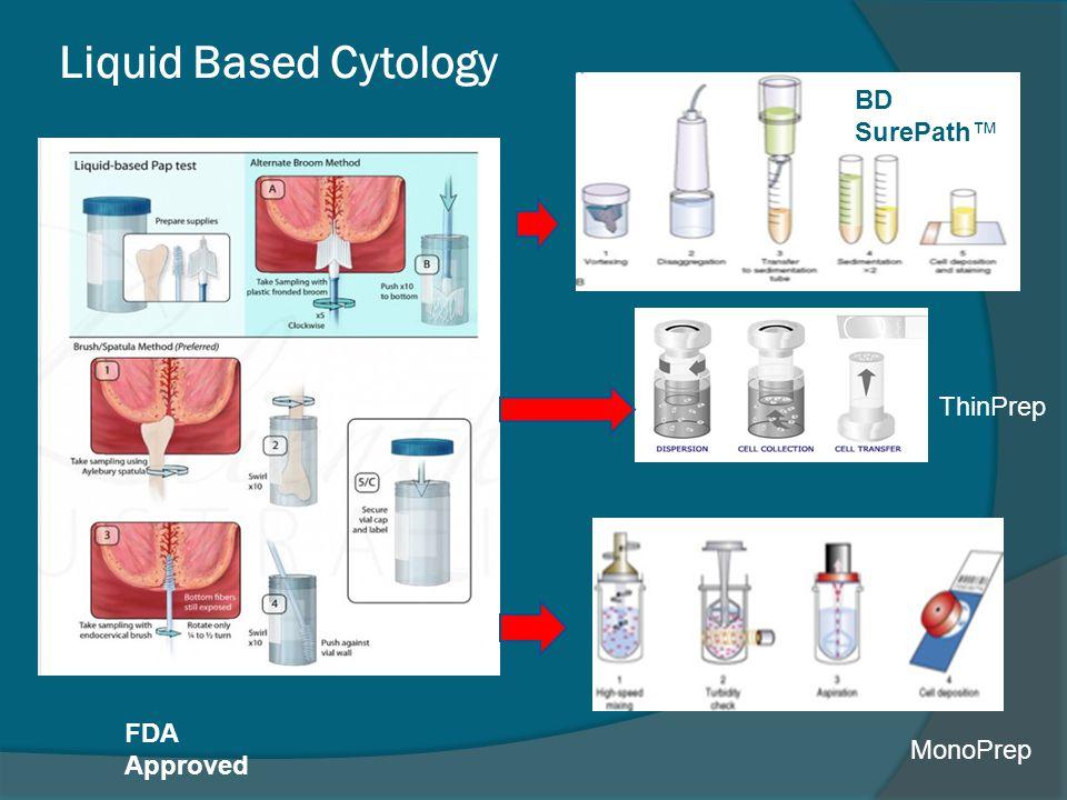 Liquid Based Cytology BD SurePath™ ThinPrep FDA Approved MonoPrep