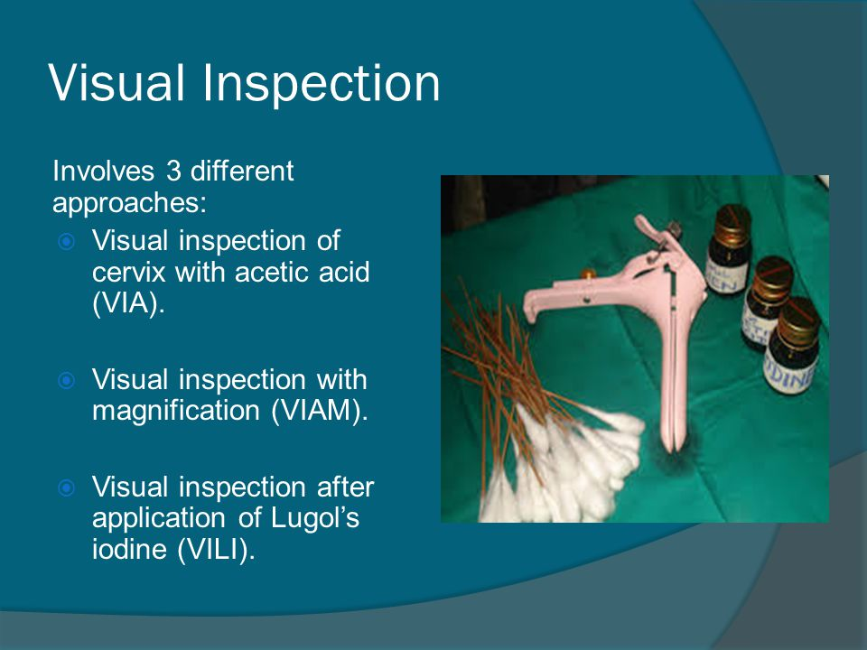 Visual Inspection Involves 3 different approaches: