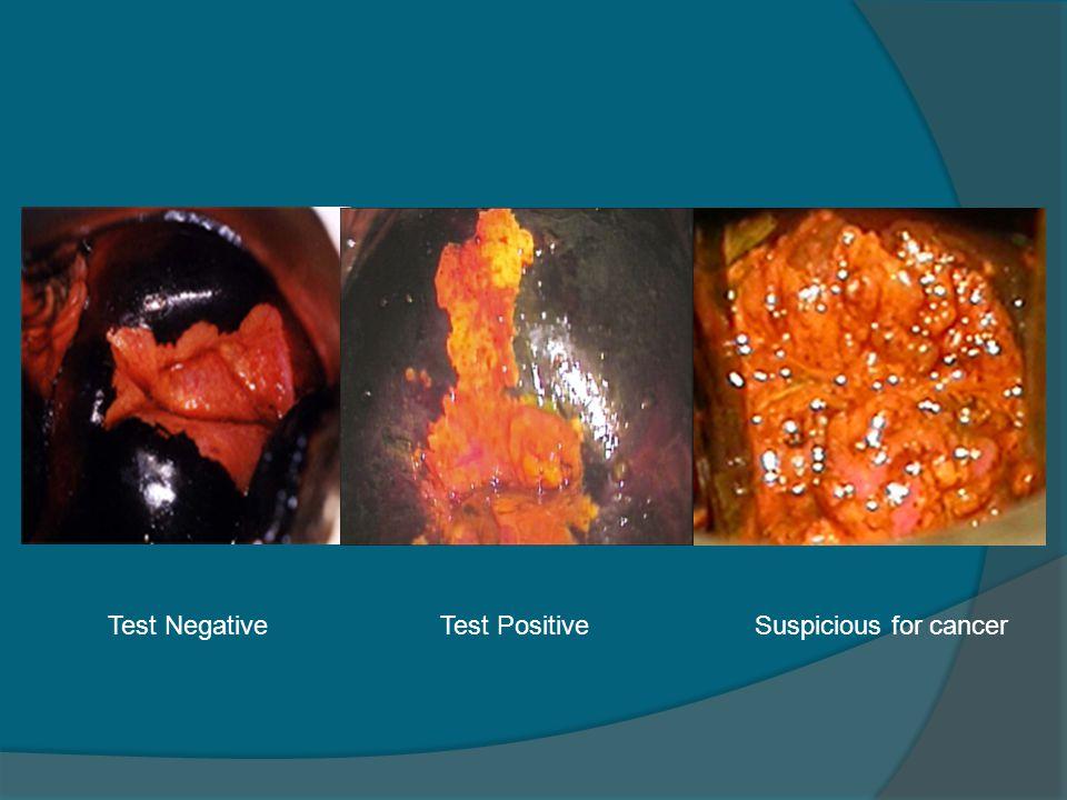 Test Negative Test Positive Suspicious for cancer