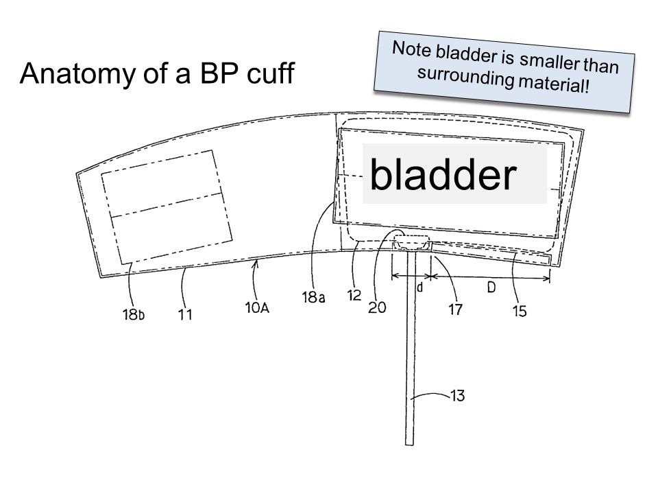 Note bladder is smaller than surrounding material!