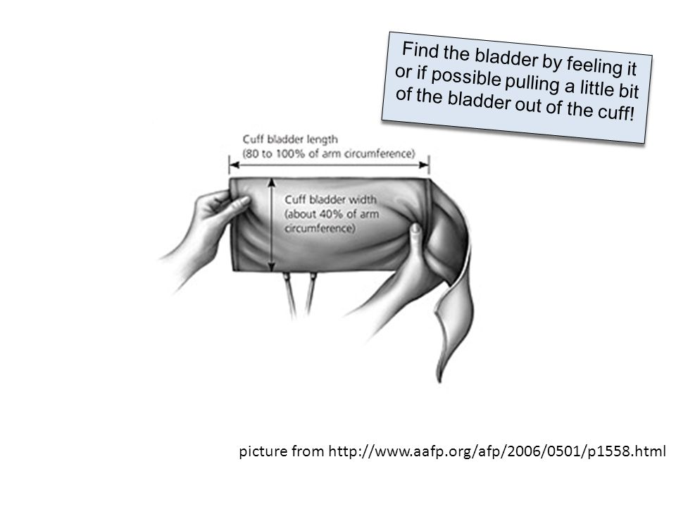 Find the bladder by feeling it or if possible pulling a little bit of the bladder out of the cuff!