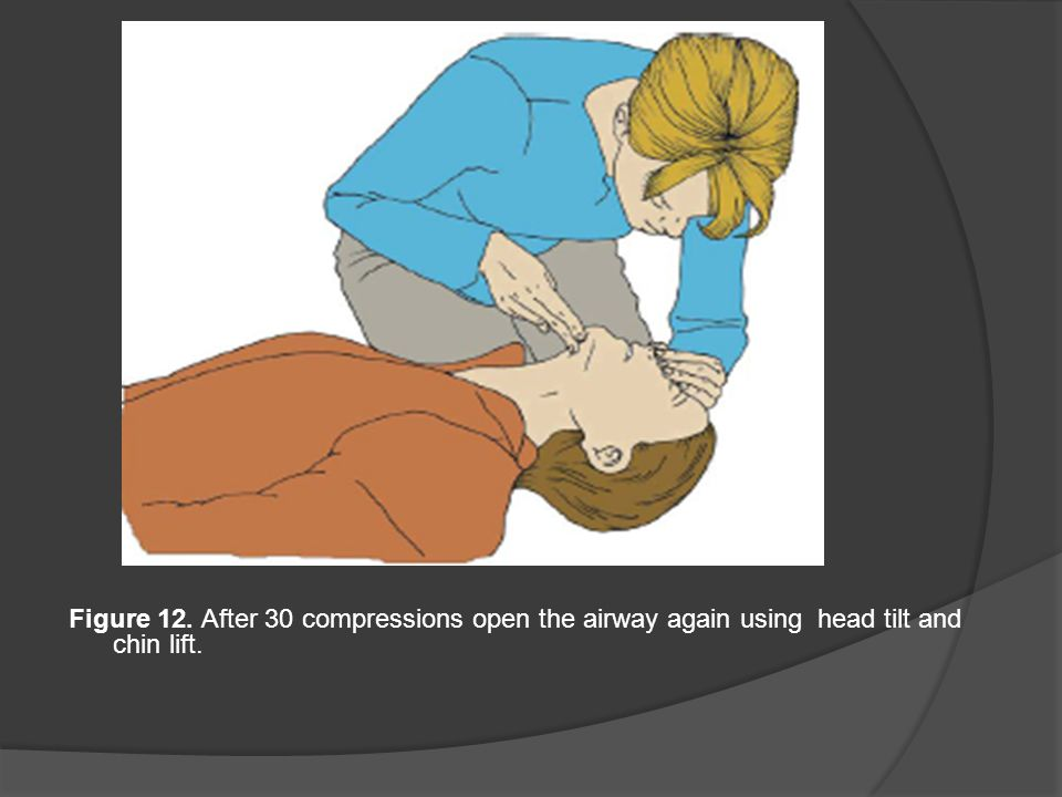 Figure 12. After 30 compressions open the airway again using head tilt and chin lift.