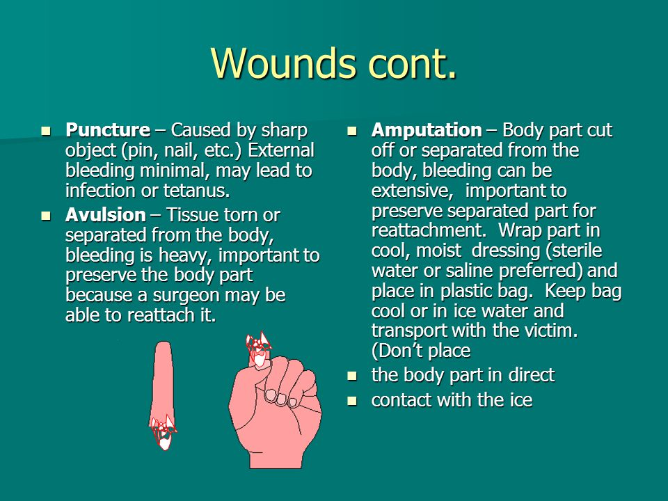 Wounds cont. Puncture – Caused by sharp object (pin, nail, etc.) External bleeding minimal, may lead to infection or tetanus.