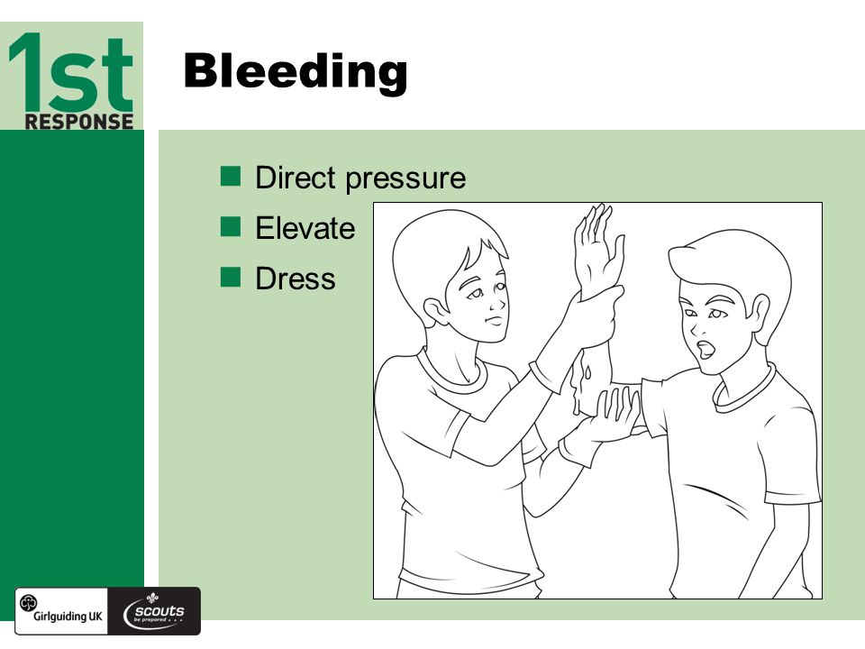 Bleeding Direct pressure Elevate Dress