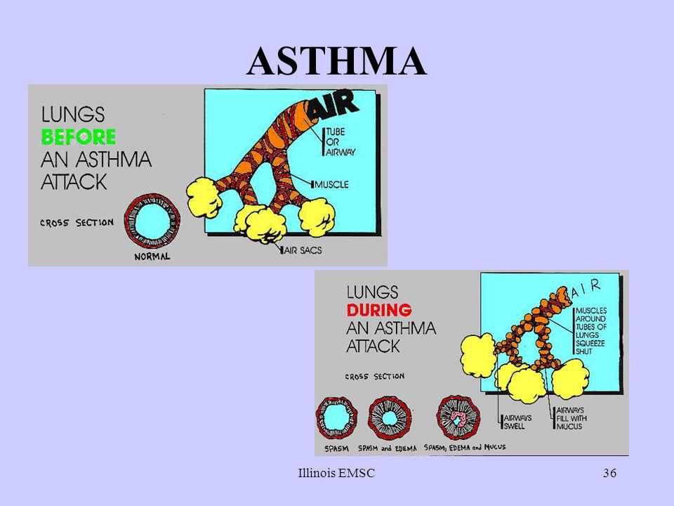 ASTHMA Illinois EMSC