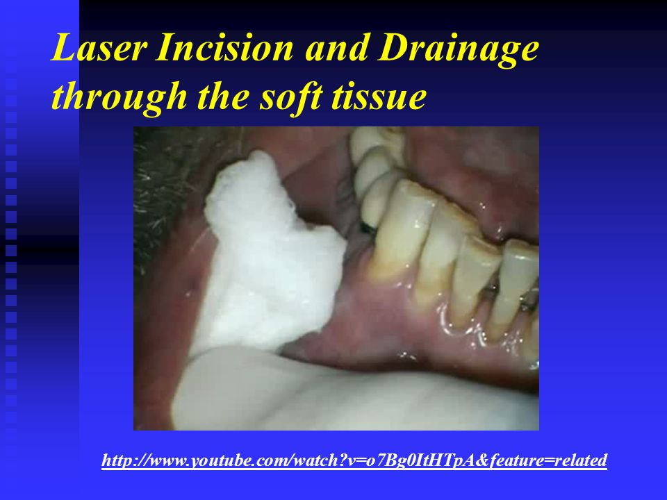 Laser Incision and Drainage through the soft tissue