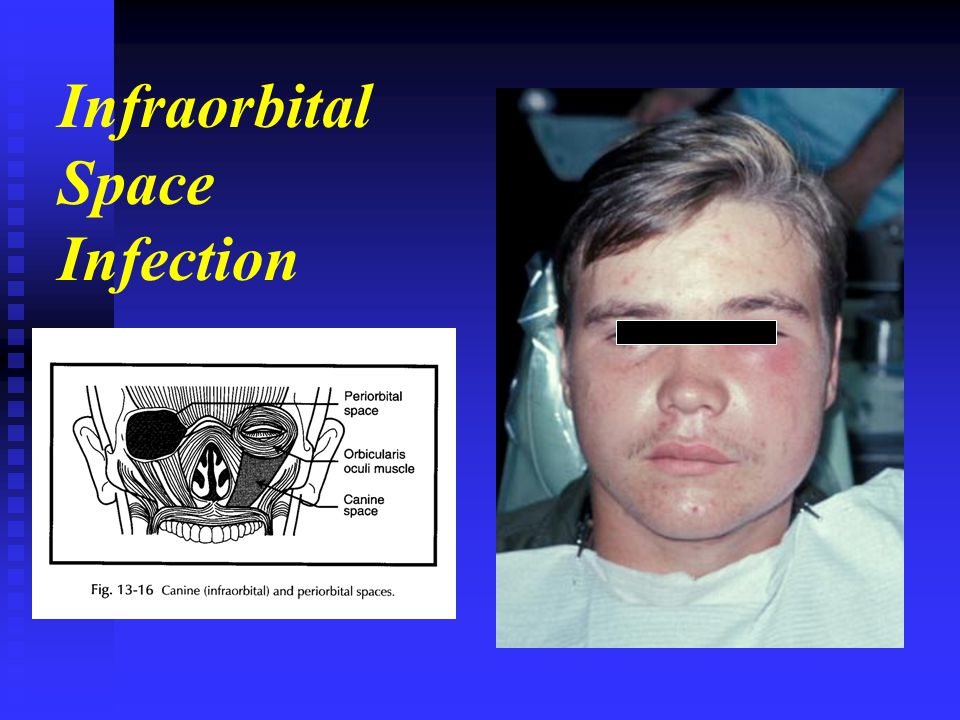Infraorbital Space Infection