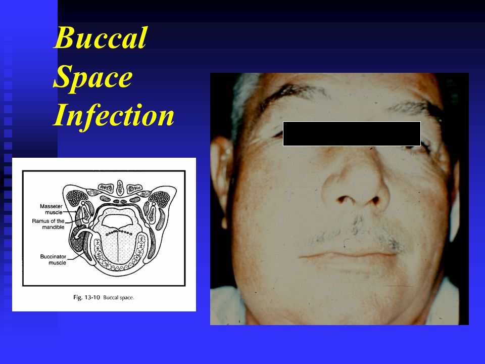 Buccal Space Infection