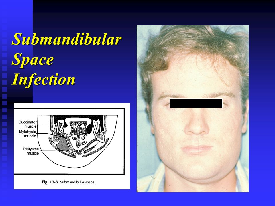 Submandibular Space Infection